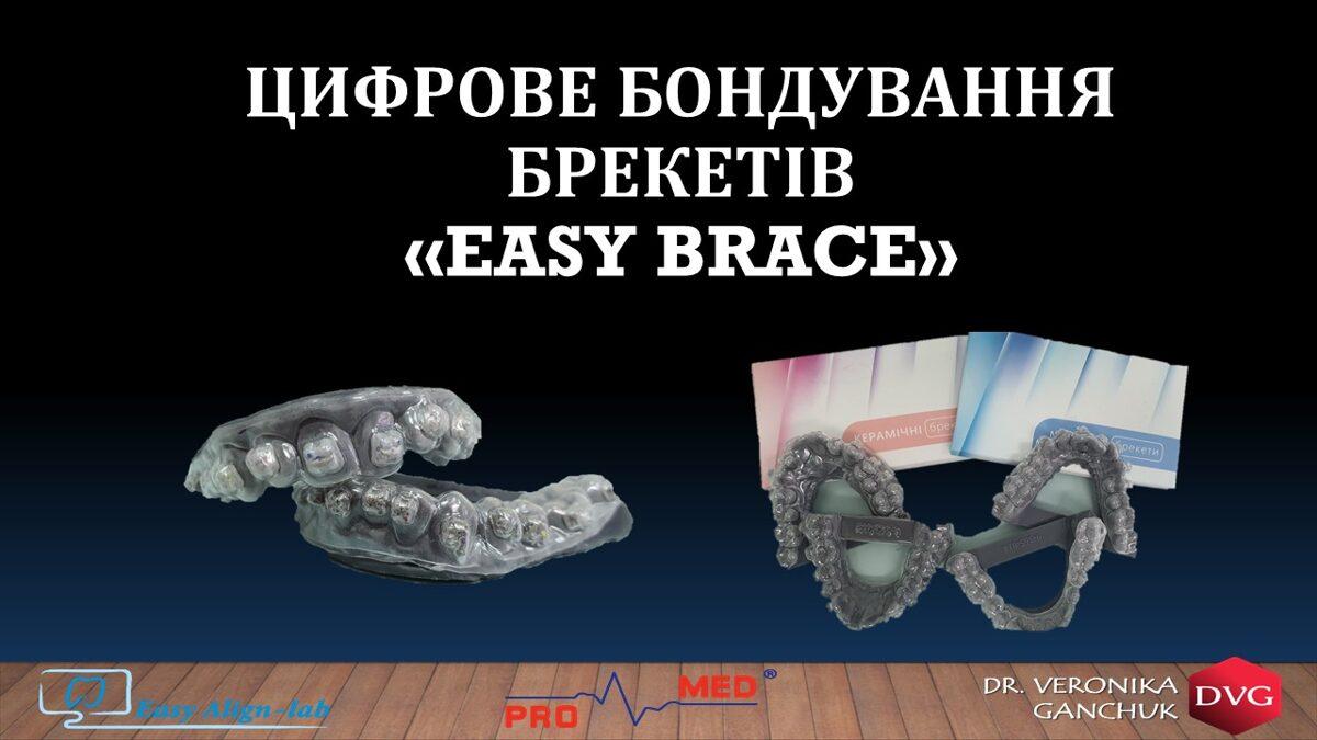 система цифрової фіксації брекетів Easy Brace